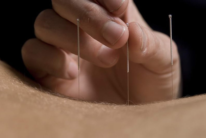 traditional needle acupuncture