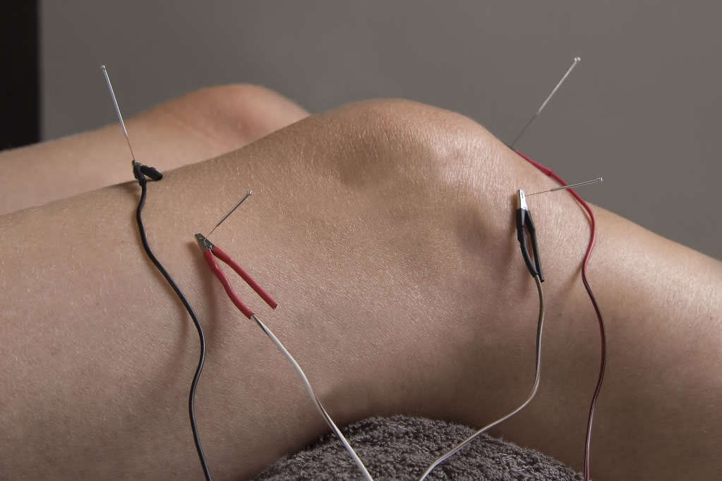 electro-acupuncture on knee