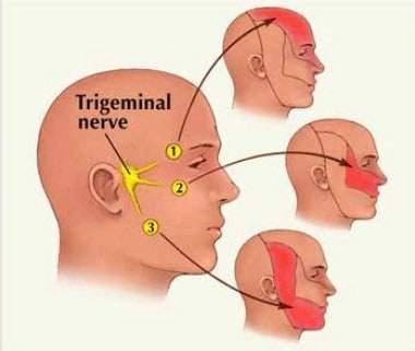 Face nerve pain - trigeminal neuralgia